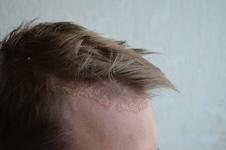 Quelques manières de traiter l'eczéma du cuir chevelu